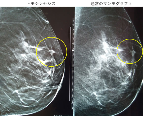 トモシンセシスサブ画像1