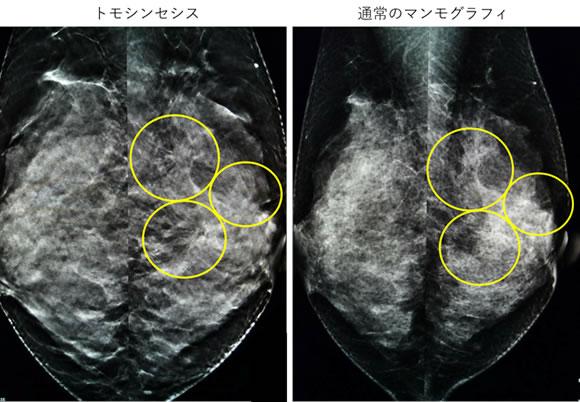 トモシンセシスサブ画像2